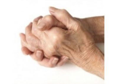Horsham Physical Therapy Clinic Wrist and Hand Pain Arthritis